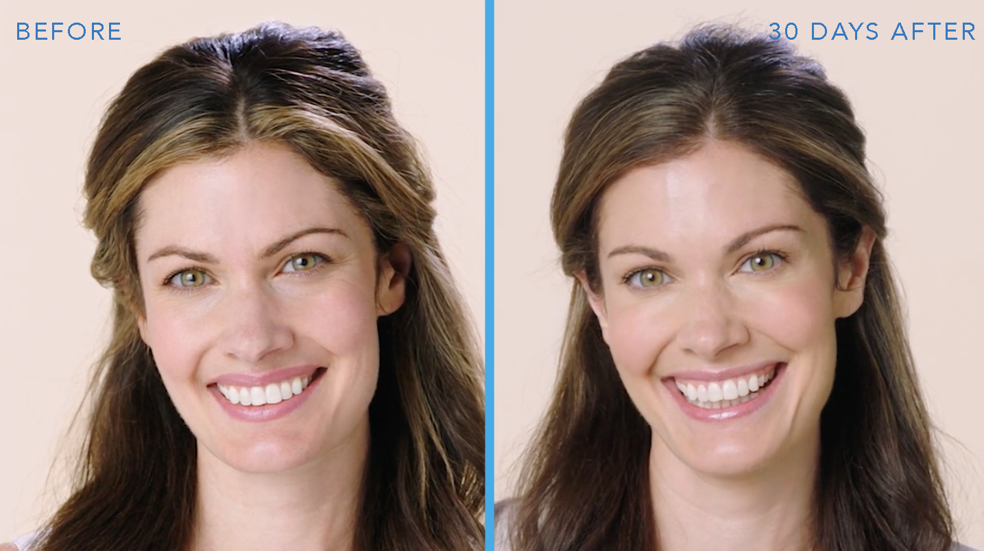 Botox Before and After Millburn, NJ
