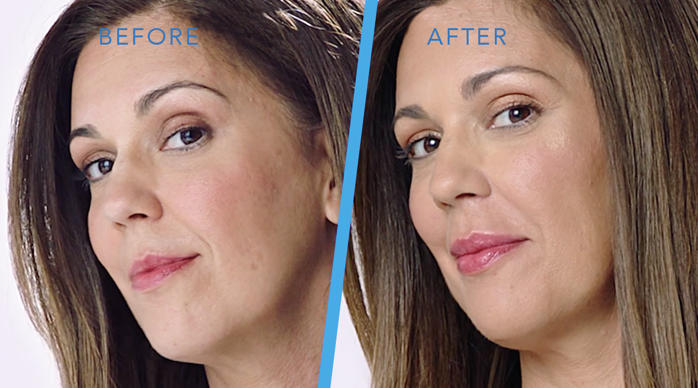 Dermal Fillers Before and After in Millburn, NJ