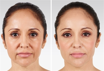dermal filler before and after results in millburn, new jersey