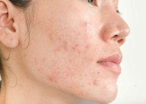 treat your mask acne in Millburn, NJ