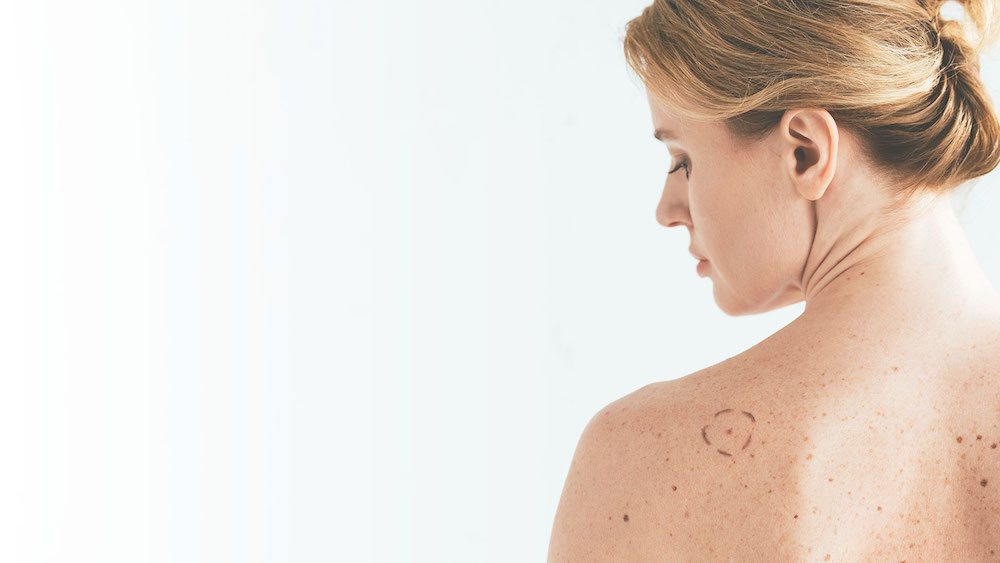 stock photo of woman for blog about protecting your skin from skin cancer in Millburn, NJ