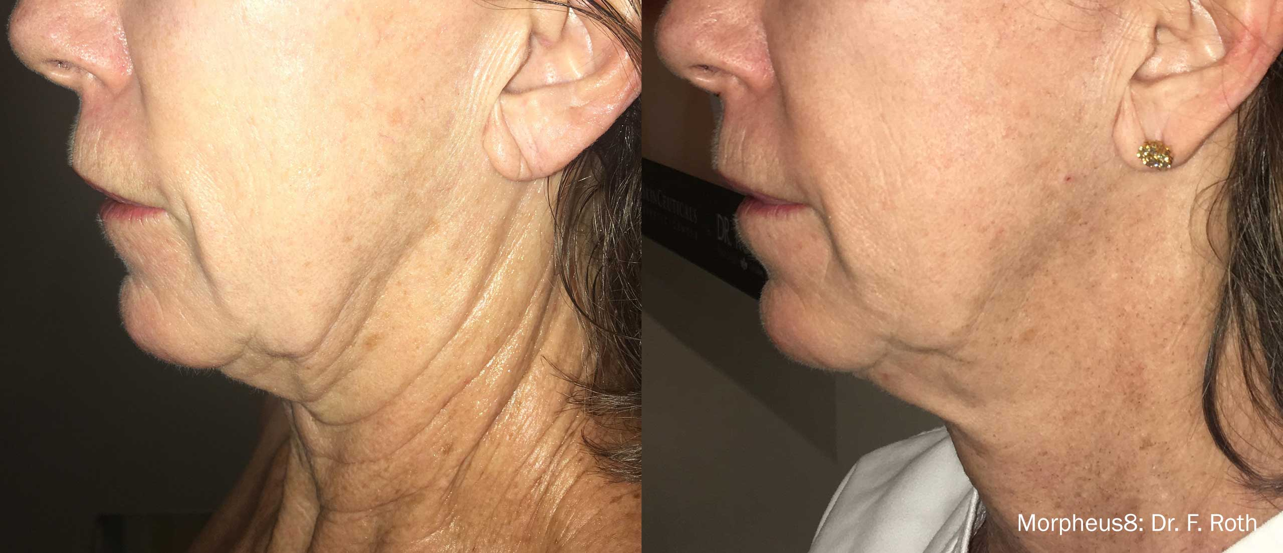 skin rejuvenation treatment results in Millburn, NJ