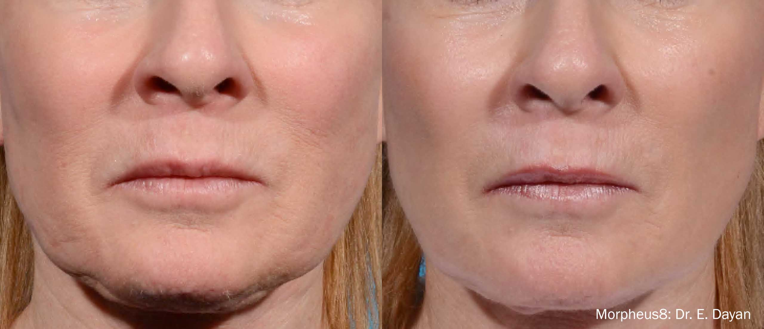 Morpheus8 skin rejuvenation treatment results in Millburn, New Jersey